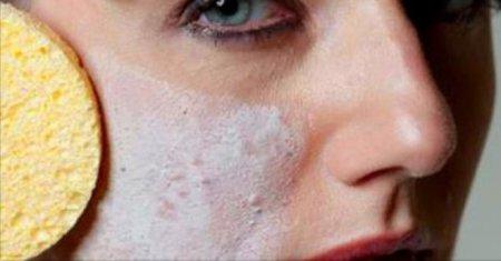 Допустим ли макияж при акне?