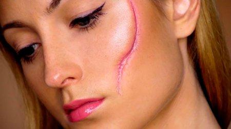 Удаление рубцов и шрамов с помощью лазера и народных средств
